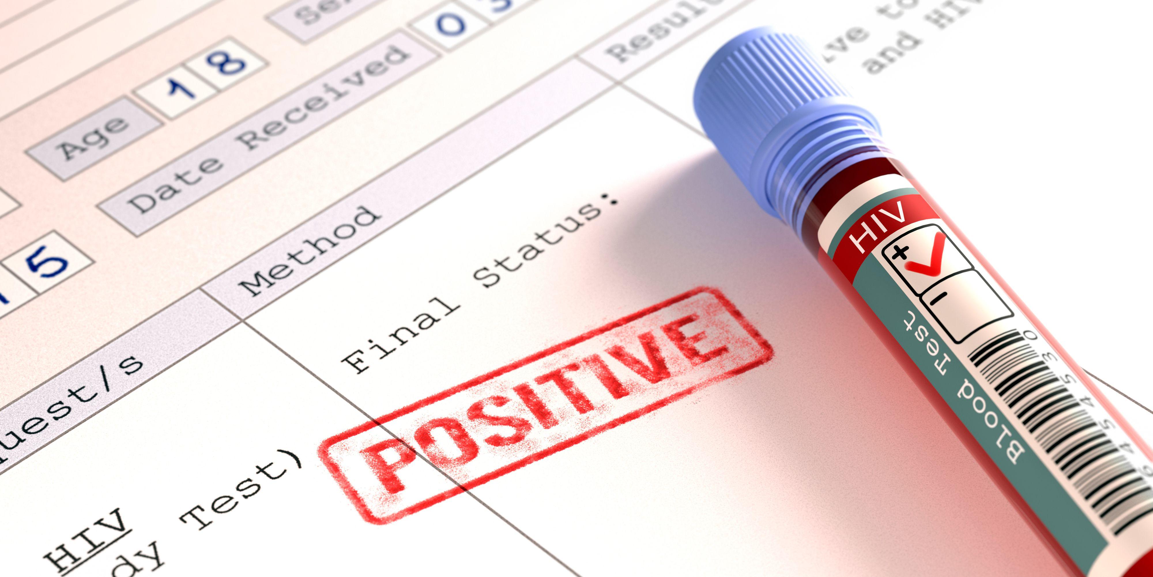 पाकिस्तान में फैला एचआईवी, अब तक 400 मरीज़ आये सामने